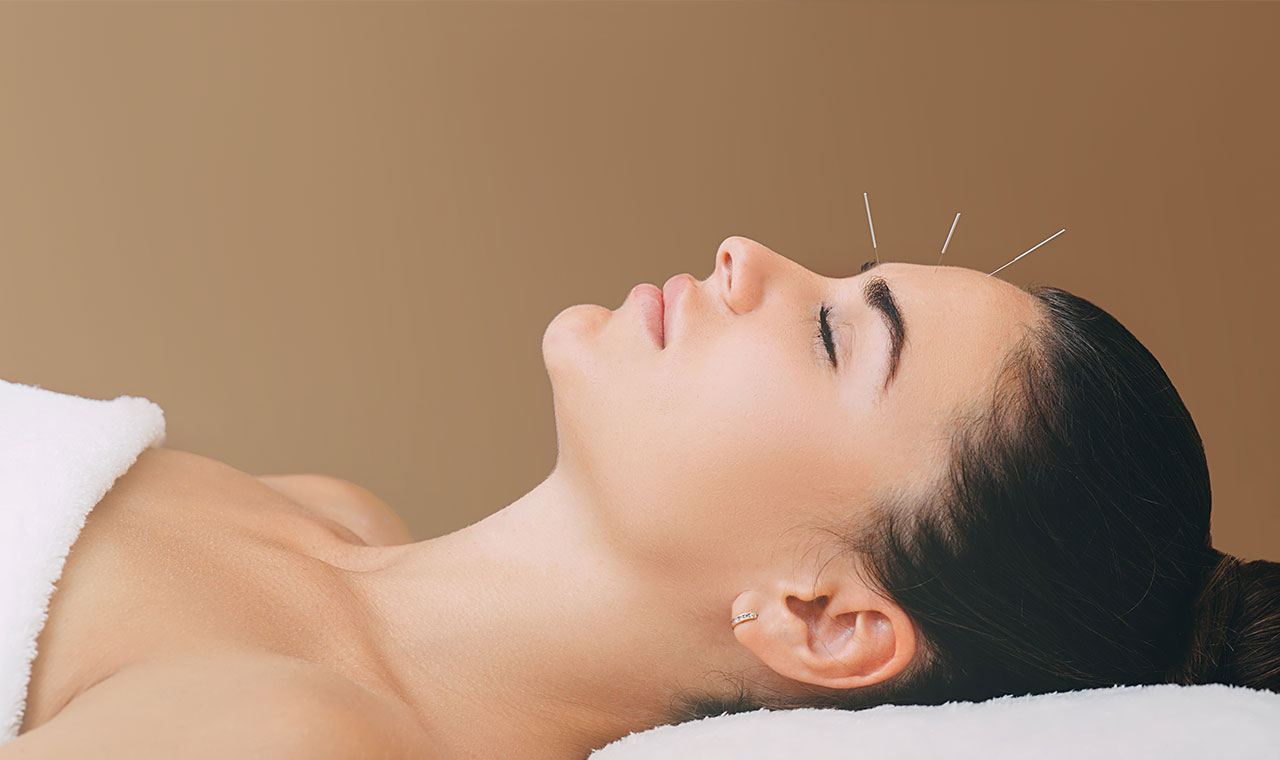 Choice Acupuncture